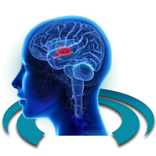 МРТ эпифиза (шишковидной железы)
