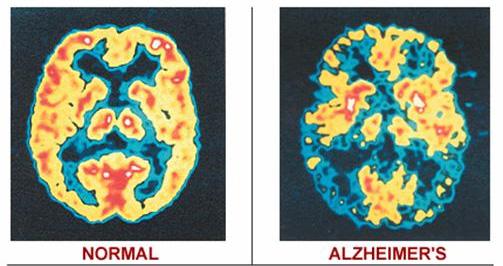 Обследование на выявление болезни Альцгеймера и Паркенсона