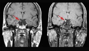 Выявление причин головной боли